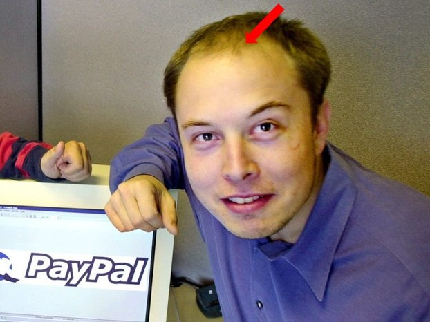 Elon Musk Bald Headed Old Photo