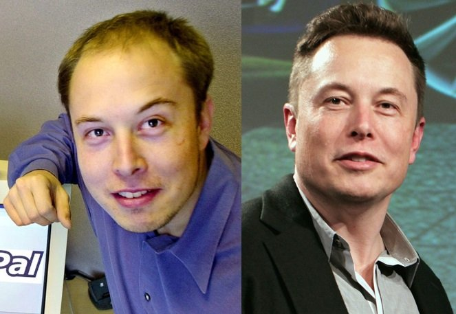Musk Before and After Hair Photos