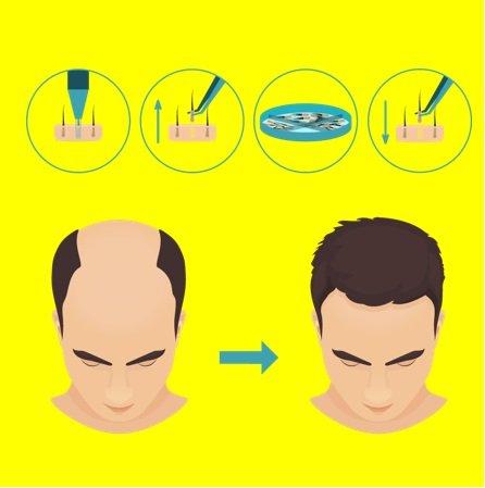 FUE Hair Transplant Like Elon Musk?