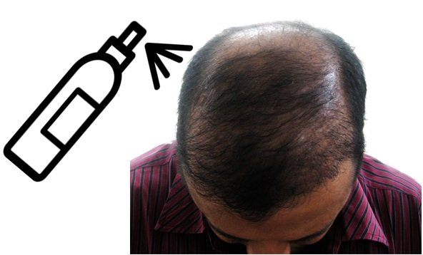 Best Bald Spot Spray