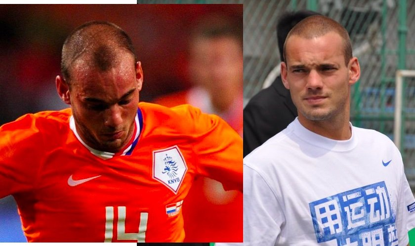 Wesley Sneijder before and after hair